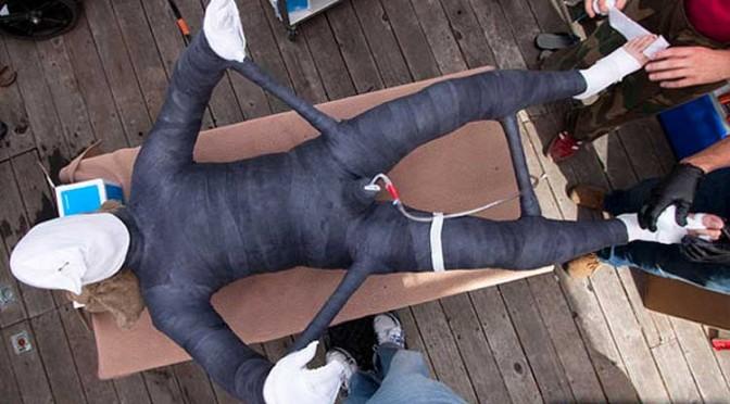 Total immobilization in a body cast
